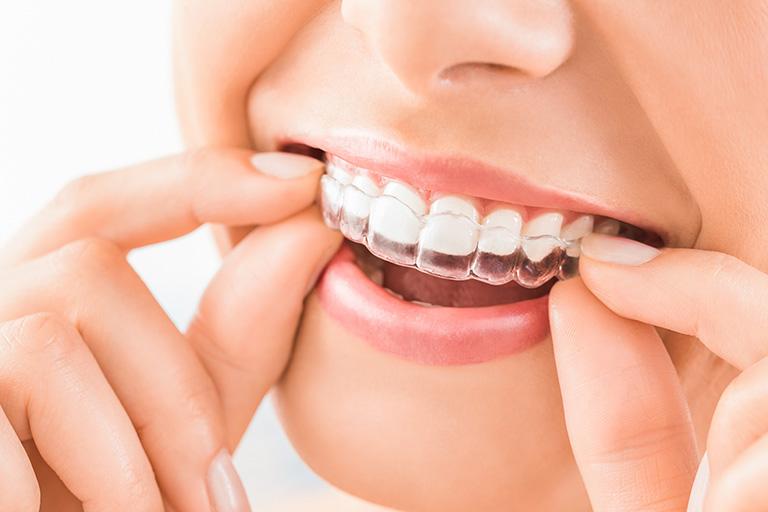 Kieferorthopädie in der Zahnarztpraxis Busche